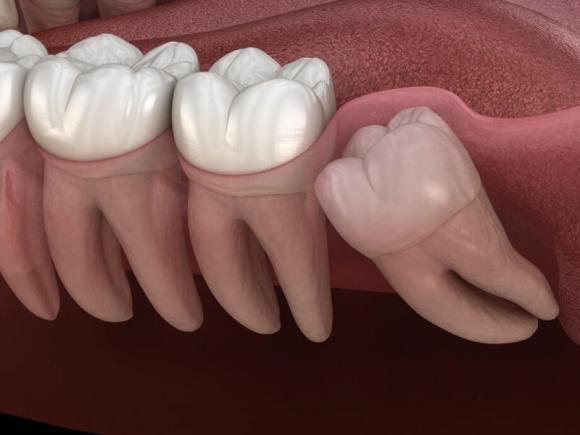 nhổ răng khôn, răng khôn, chăm sóc sức khỏe đúng cách