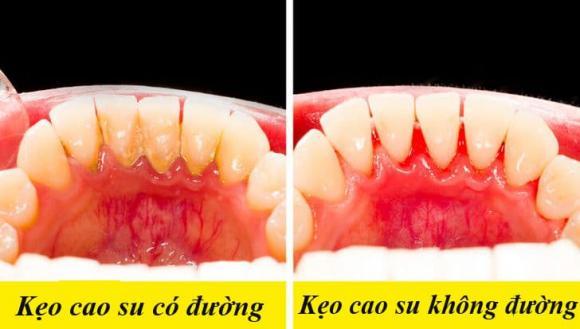 kẹo cao su, ảnh hưởng của kẹo cao su, kiến thức
