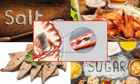 chăm sóc sức khỏe đúng cách, lưu ý khi chăm sóc sức khỏe, kiêng kị khi ăn mộc nhĩ