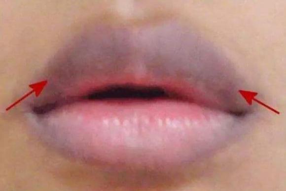 tử cung, miệng, môi, bệnh phụ khoa