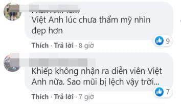 Bằng Kiều, Việt Anh, Việt Anh sau thẩm mỹ, sao việt
