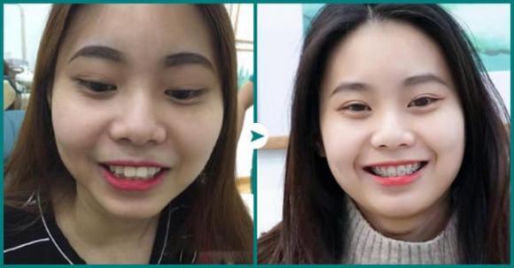 Niềng răng công nghệ mới, Nha khoa thẩm mỹ Queen Smile
