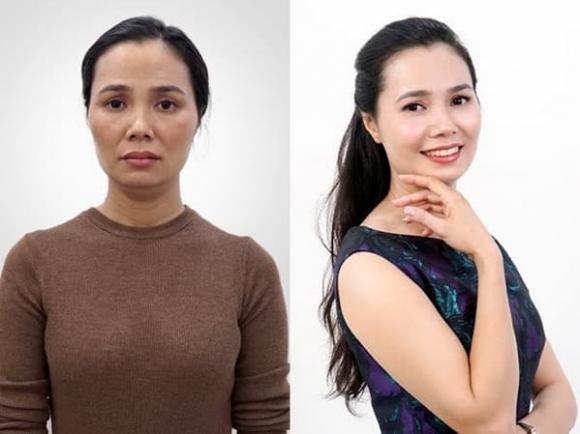 Căng chỉ Be -Young, Trẻ hóa da, Phòng khám đa khoa JK Việt Nam