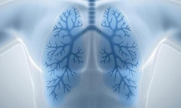 ung thư phổi, dấu hiệu ung thư