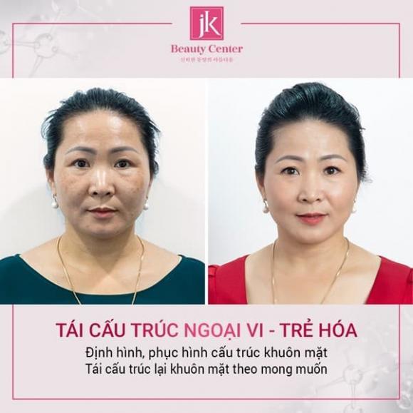 phòng khám chuyên khoa thẩm mỹ JK Việt Nam, trẻ hóa da