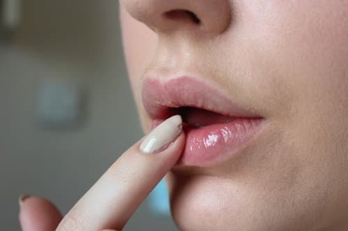 Bí quyết tự nhiên chữa thâm môi, tránh nứt nẻ vào mùa hanh khô
