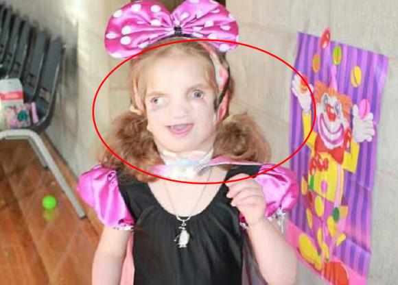 Bé gái sinh ra có khuôn mặt biến dạng, đột biến gen, kỳ lạ