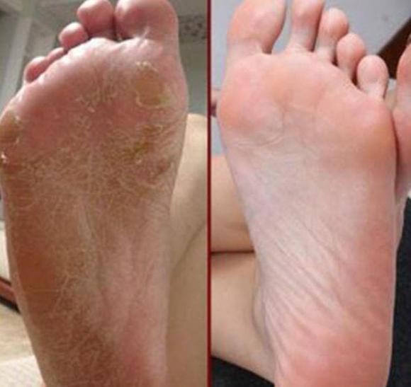 ung thư, ung thư gan, bàn chân