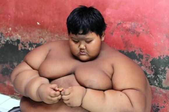 Cậu bé béo nhất thế giới, Arya Permana