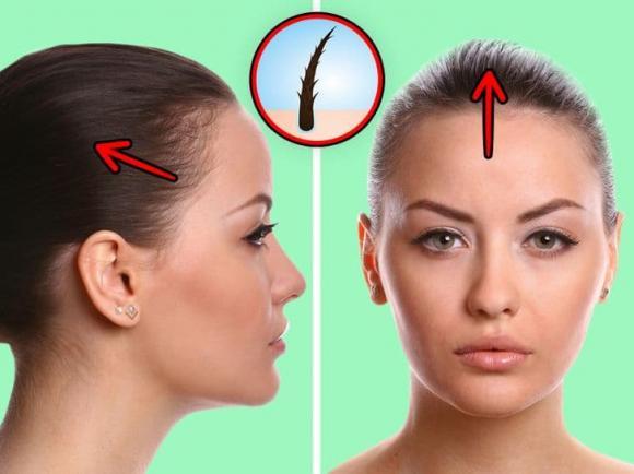 cột tóc, tác hại của cột tóc