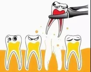 nhổ răng, nha khoa, răng miệng, sức khỏe