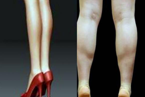 bắp chân, chân thon, tập luyện,