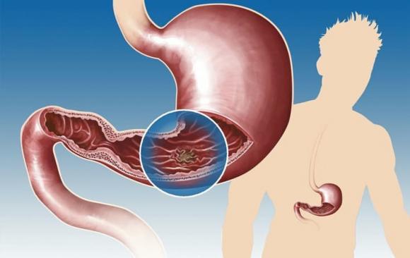 viêm loét dạ dày, bệnh dạ dày