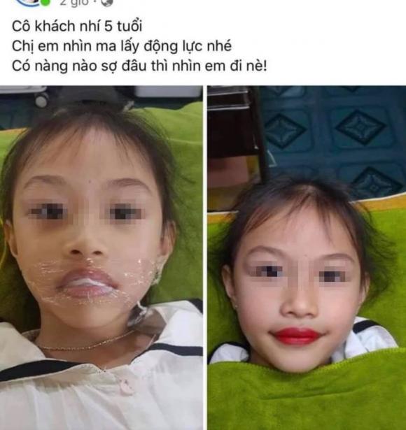xăm môi, xăm môi bé gái 5 tuổi