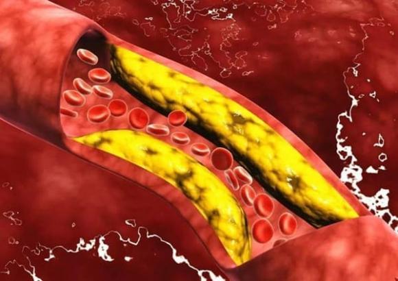 tuần hoàn máu, thực phẩm tốt cho tuần hoàn máu, mạch máu