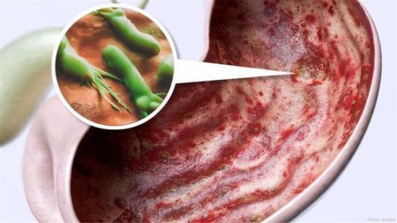 Helicobacter pylori, HP dạ dày, bệnh dạ dày