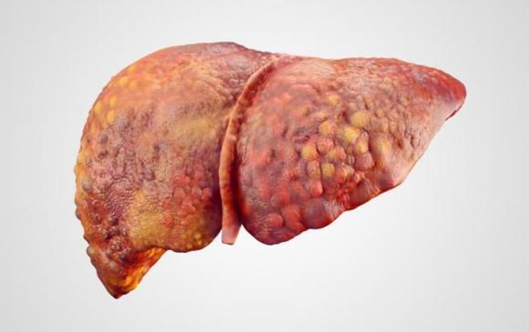 bệnh gan, sức khoẻ