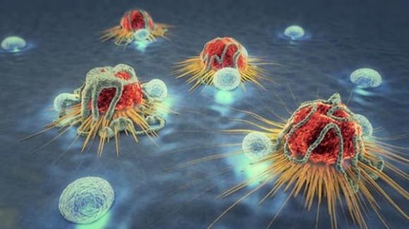 ung thư, dấu hiệu ung thư, dấu hiệu ung thư ở cổ