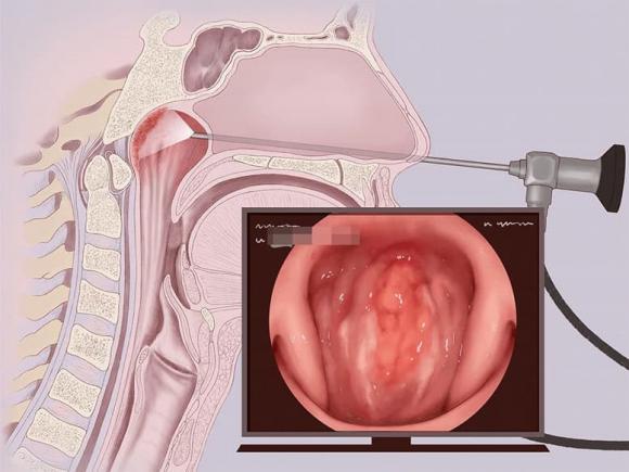 ung thư vòm họng, ung thư mũi, ung thư