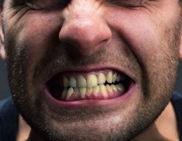 răng ố vàng, nguyên nhân khiến răng ố vàng, chăm sóc răng