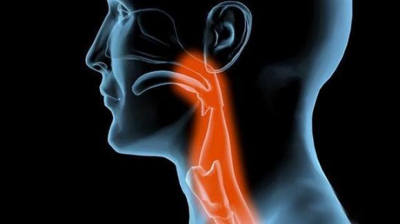 ung thư, dấu hiệu ung thư, ung thư cổ họng