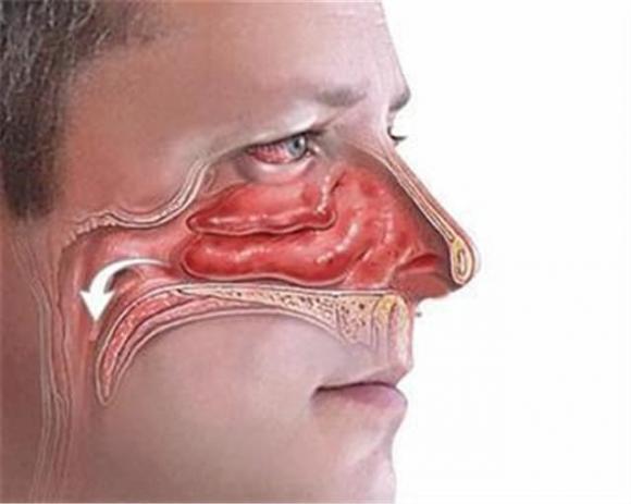 ung thư vòm họng, ung thư
