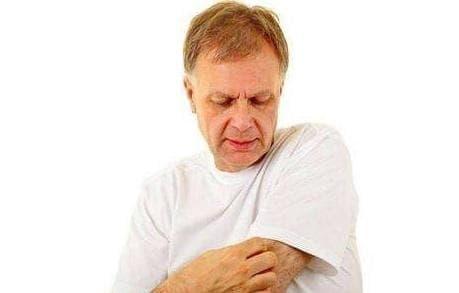 chăm sóc sức khỏe đúng cách, bệnh ngoài da, nguyên nhân da bị ngứa