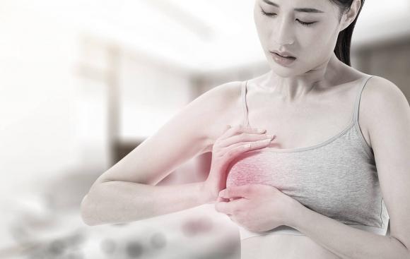 ung thư vú, ung thư, sức khỏe phụ nữ