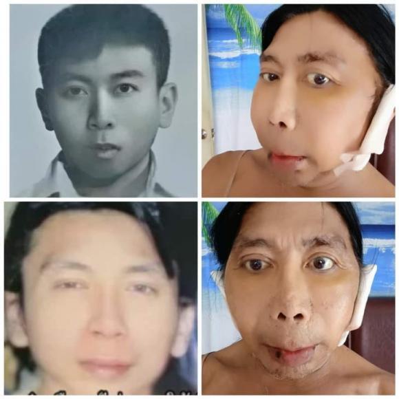 Sitang Buathong, Thảm họa chuyển giới Thái Lan, phẫu thuật hỏng