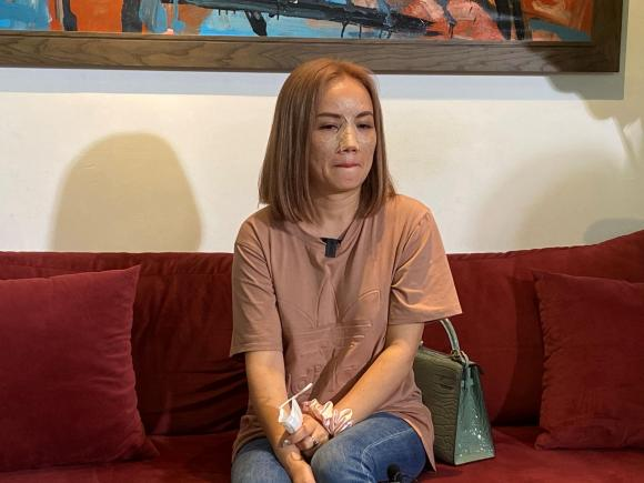 Hoàng Yến, Nữ diễn viên, Chồng cũ hành hung
