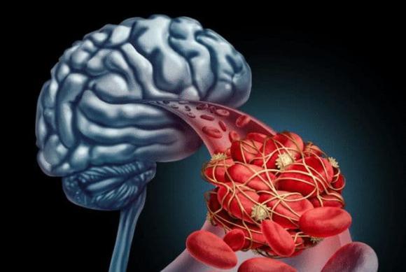 nhồi máu não, tắc mạch máu não, sức khỏe tuổi trung niên