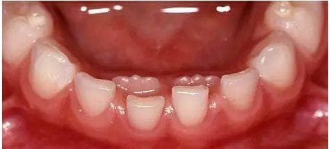 thay răng, hàm răng