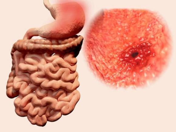 ung thư đại trực tràng, ung thư, ung thư ruột kết
