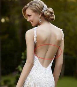 Nốt ruồi trên lưng phụ nữ, nốt ruồi, xem nốt ruồi, vị trí nốt ruồi