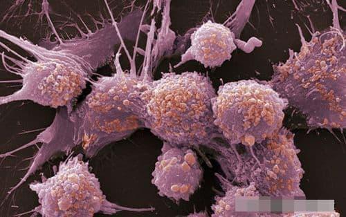 ung thư, phòng tránh ung thư, tế bào ung thư, thói quen xấu