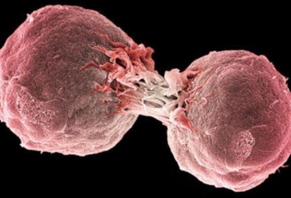 ung thư, đại tiện, dấu hiệu ung thư