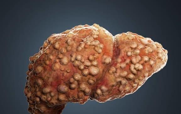 bệnh gan, hại gan, bảo vệ gan, ung thư gan, rau giá