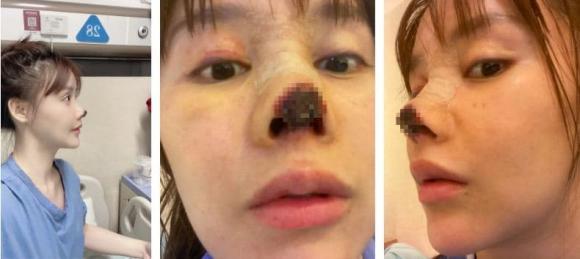 phẫu thuật thẩm mỹ hỏng, hoại tử mũi, sao hoa ngữ, cao lưu