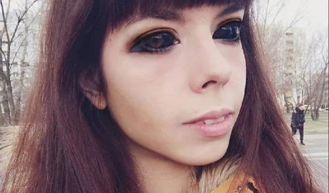 Cô gái bị mù sau khi xăm mực đen lên nhãn cầu để giống thần tượng 6
